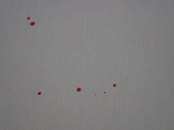 退治した蚊から飛び散った自分の血液