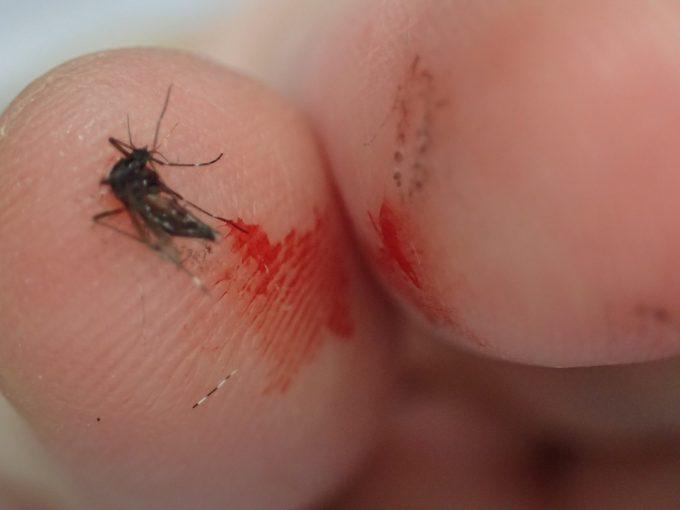 血を吸ったヤブ蚊(ヒトスジシマカ)を駆除した直後の指