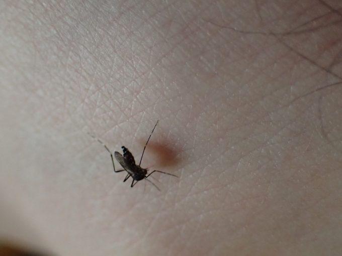 """特に体毛・足毛がない""""くるぶし""""などが蚊の絶好のターゲットになる"""