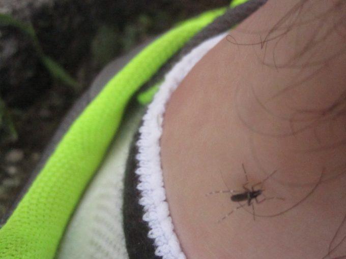 """肌が露出した""""くるぶし""""付近が何箇所も蚊に刺されて血を吸われた"""