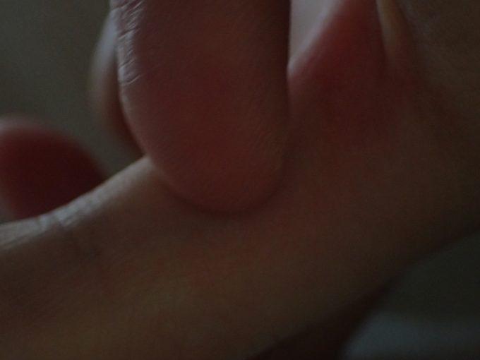 蚊に刺されたアレルギー症状で痒くなり爪で掻きむしる!