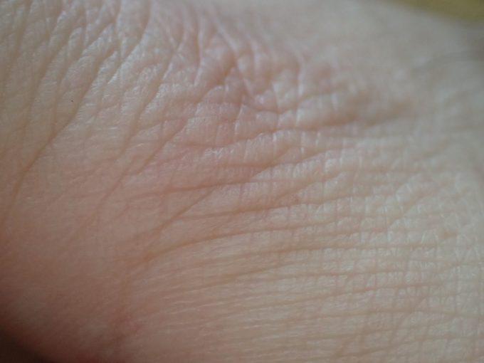 害虫ヒトスジシマカ(蚊)が血を吸う瞬間