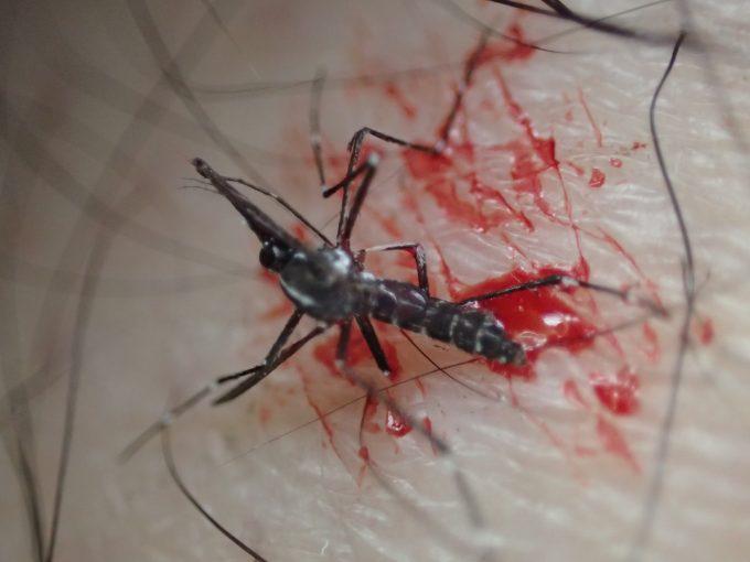 足から血を吸っていたメス蚊を一撃で退治した写真