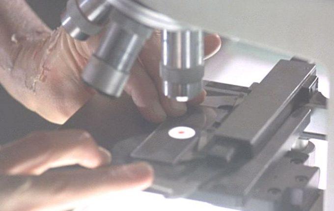研究室の顕微鏡で己の血液を調べるジェニファー