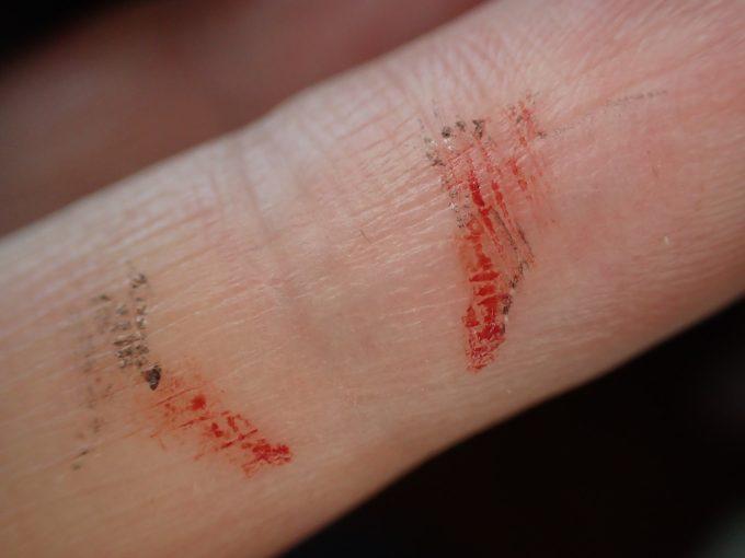 自分の手には蚊が吸った赤い血の跡がベッタリと付いて乾いている