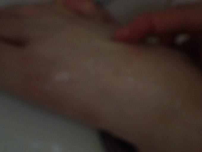 蚊に刺されて赤く膨らんだ箇所を流水で洗い流してみる
