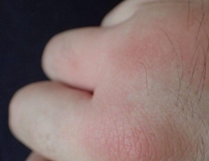 手の指や甲など一気に3箇所を同時に刺された