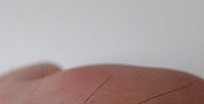 刺された側の右手の写真・画像は明らかに赤く腫れている