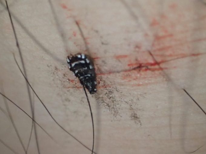 足には蚊の腹部だけが残ってしまった