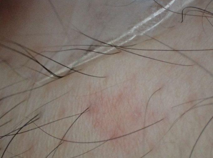 体毛も巻き込んでセロハンテープを貼った蚊刺され跡