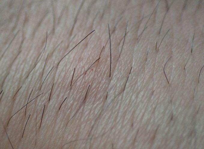 ムダ毛を剃って処理した腕は蚊に刺されやすなった
